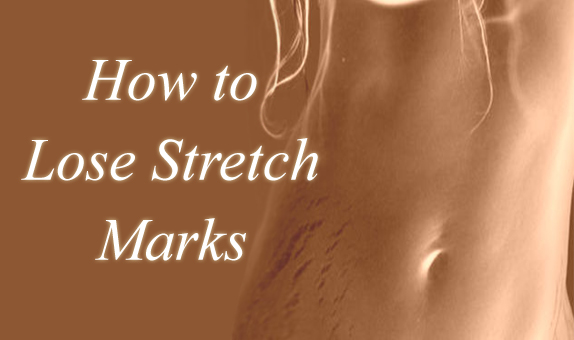 how to lose stretch marks in a week