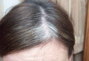vitamins to prevent gray hair