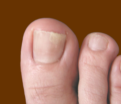 how to toe nails grow