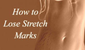 how-to-lose-stretch-marks-thumb
